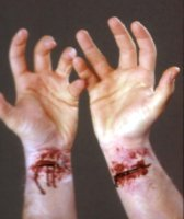 SLASHED WRIST APPLIANCE